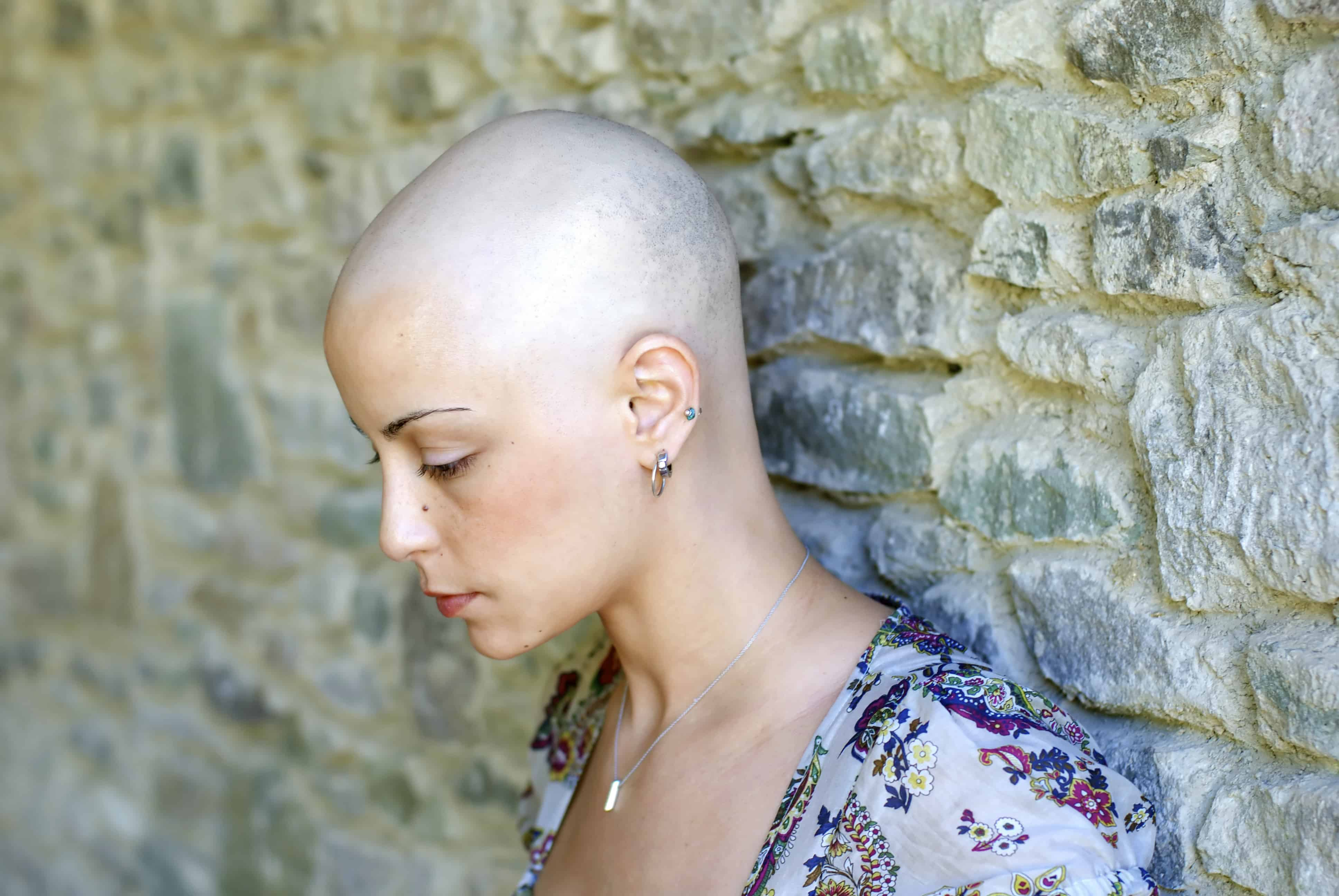 Chemotherapy And Hair Loss Causes And Treatments