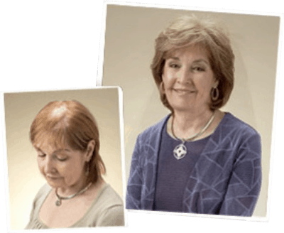 Before and after picture of a women who has done the Microfusion Procedure