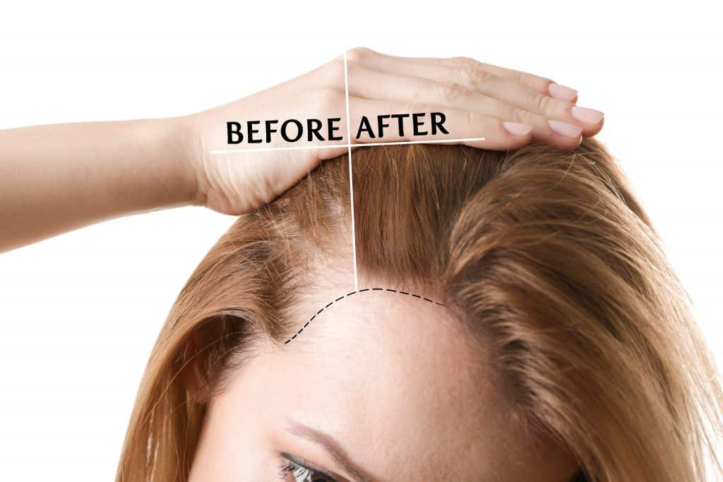 Picture of a women suffering From Thinning hair Loss, Before & After Picture of Laser Light Therapy