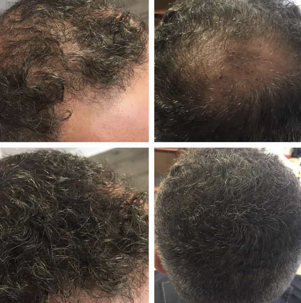 Example of men suffering from Hair Loss, Before and After Pics