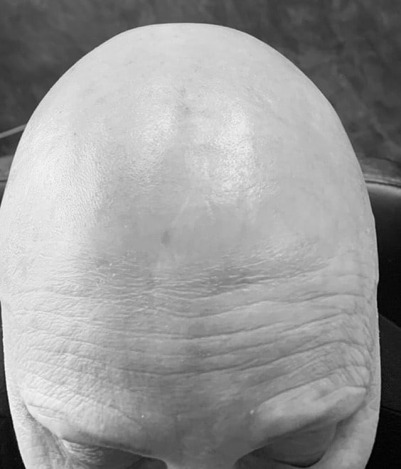 A Picture of a Women Suffering from hair loss
