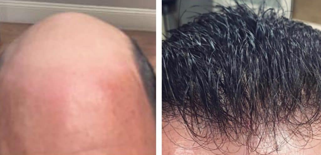 Before & After Pictures of men suffering from Men's hair loss and the other one after treatment