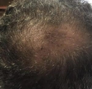 A Man Suffering from Thinning Hair loss
