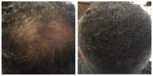 Side by side picture of before and after treatment of a man suffering from Balding and the other after treatment with more hair